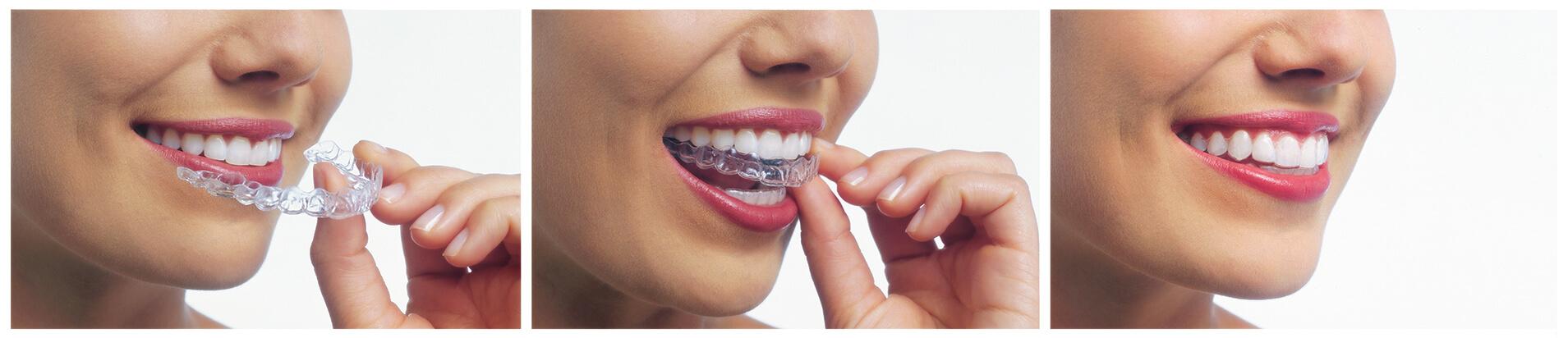 Invisalign Provider Yamamoto & Lee Family Dentistry, Roseville CA